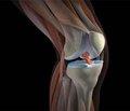 Повреждения синовиальной оболочки коленного сустава, клиника и лечение