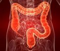 Оценка результатов лечения полипов толстой кишки, ассоциированных с язвенным колитом и болезнью Крона