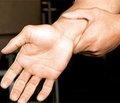 Хирургическое лечение посттравматических дефектов и ложных суставов трубчатых костей кисти