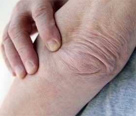 Стабилизирующие операции у больных с диабетической остеоартропатией