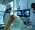 Пластика остеомиелитических дефектов длинных костей с использованием кальций-ДЗ Никомед Форте
