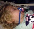 Клинико-лабораторная диагностика и выбор метода лечения у детей с острой гнойно-деструктивной пневмонией