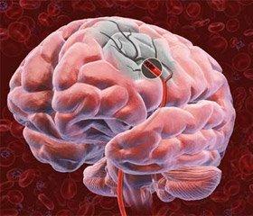 Аналіз демографічних даних та скарг хворих на цервікогенну вертебробазилярну недостатність мозкового кровообігу на ранній стадії захворювання