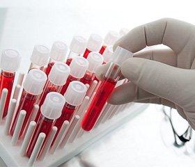 Медико-биологические представления о терапии в процессе регенерации костной ткани препаратами, модулирующими структуру хряща (предварительное сообщение)