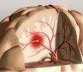 Нарушение ауторегуляции мозгового кровотока  как фактор развития мозговых дисциркуляций  при сахарном диабете 2-го типа