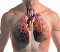Изучение патогенетических механизмов развития нарушений сердечно-легочной гемодинамики при обширных резекциях легких в эксперименте