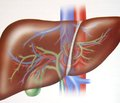Инновационные технологии в хирургическом лечении гепатоцеллюлярной карциномы сопухолевым тромбозом воротной вены