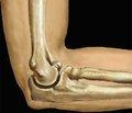 Преимущества аппарата внешней фиксации с шаровым шарниром при внутрисуставных переломах дистального метаэпифиза плечевой кости