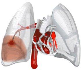 Тромбоемболія легеневої артерії: сучасні погляди на діагностику та лікування