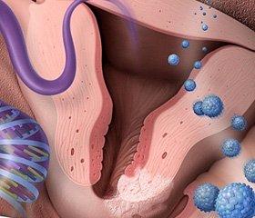 Досвід застосування поліхіміотерапії і препаратів інтерферону-альфа2 в комбінованому лікуванні хворих на рак шийки матки I-II стадії