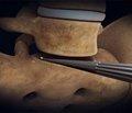 Транспедикулярный межтеловой спондилодез в комплексном лечении проникающих и оскольчатых переломов поясничного отдела позвоночника