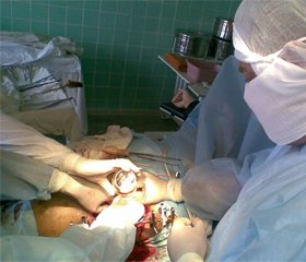 Тактика в хірургічному лікуванні переломів проксимального метаепіфіза великогомілкової кістки