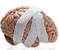 Роль антагонистов глутаматных рецепторов (ПК-Мерц) в лечении повреждений мозга (обзор литературы)