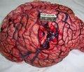 Оцінка комплексного лікування хворих із гострим супратенторіальним внутрішньомозковим крововиливом