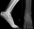 Особливості діагностики та лікування вродженого вертикального положення таранної кістки