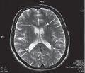 Магнитно-резонансная томография пpи хронической ишемии мозга гипертонического и атеросклеротического генеза