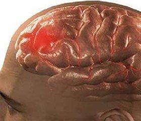 Прогнозирование исхода крайне тяжелой  черепно-мозговой травмы. Диагностика смерти мозга