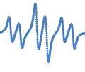 Нейрометаболические эффекты ритмической транскраниальной магнитной стимуляции у пациентов с эпилепсией по данным протонной магнитно-резонансной спектроскопии