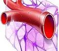 Хронічна післяінфарктна аневризма: гібернація,апоптоз і вторинний некроз кардіоміоцитів