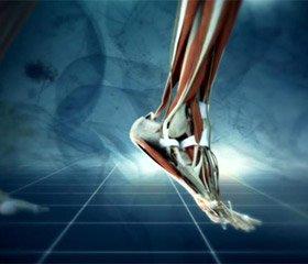Результати довготривалої електростимуляції при наслідках ушкодження малогомілкового нерва