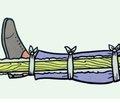 Влияние этиологического фактора травмы на течение репаративного остеогенеза.  Часть 4. Сравнительный анализ течения репаративных процессов у пострадавших с изолированными диафизарными переломами нижних конечностей при прямом и непрямом механизме травмы