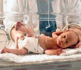 Локальний протокол «Організація медичної  допомоги недоношеним дітям при народженні»