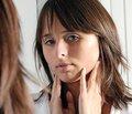Синдром тиреотоксикозу