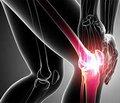 Новый имплантационный материал в лечении опухолей длинных костей (экспериментальное исследование)