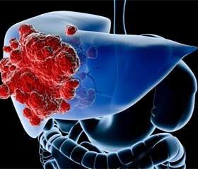 Использование радиочастотной термоабляции при лечении опухолей печени и поджелудочной железы