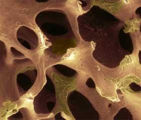 Керамопластика при лікуванні гігантоклітинних пухлин кісток