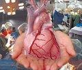 Правильне розуміння та реалізація змін у законодавстві про трансплантацію — шлях до збереження багатьох життів