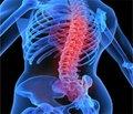 Клинический опыт тромбопрофилактики вортопедии