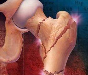 Остеопороз – метаболическое заболевание костей
