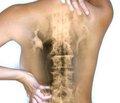 Локальная терапия в комплексном лечении пациентов старших возрастных групп с болью внижней части спины