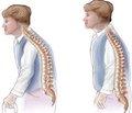 Проведение обучения пациентов с остеопорозом. Есть ли необходимость его использования в реальной клинической практике?