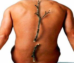 Нарушения минеральной плотности костной ткани и вторичный остеопороз при патологии гепатобилиарной системы и желудочно-кишечного тракта: на перекрестке проблем