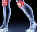 Оптимизация топикальной терапии пациентов состеоартрозом коленного сустава