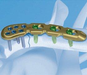 Накостный металлоостеосинтез внутрисуставных переломов пяточной кости