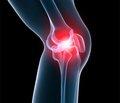 Гендерні особливості остеодефіциту у хворих на остеоартроз