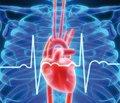 Нестандартные подходы к лечению острой сердечной недостаточности