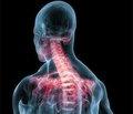 Возможности использования ЦОГ-2  селективного препарата эторикоксиба  в лечении хронической боли, обусловленной патологией опорно-двигательного аппарата