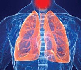 Риски и польза от применения антибиотиков при инфекциях дыхательных путей