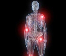 Глюкокортикостероид-индуцированный остеопороз позвоночника у больных с ревматическими заболеваниями