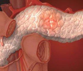 Оцінка параметрів ендотоксемії у хворих на гострий панкреатит