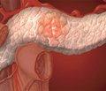 Патология поджелудочной железы, первичная и вторичная панкреатическая недостаточность при заболеваниях кишечника