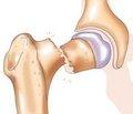 Сравнительный анализ методов лечения переломов вертлужной впадины. Клинико-статистическое исследование