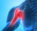 Состояние минеральной плотности костной ткани и андрогенного статуса у больных ревматоидным артритом мужского пола