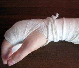 Особенности клинического течения и хирургической реабилитации пациентов с оскольчатыми переломами бедренной кости