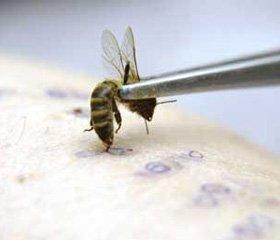 Пчелиный яд в лечении заболеваний суставов и мышц