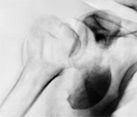 Наш опыт применения однополюсного цементного эндопротезирования при многофрагментарных переломах проксимального отдела плечевой кости